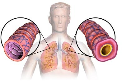Normal vs Inflamed Air Passage in smokers