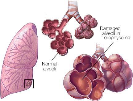 Normal vs Damaged Alveoli in Emphysema